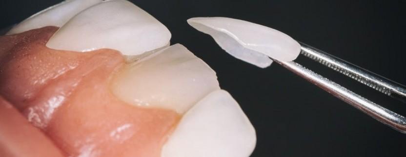 Dantų gydymo procedūra
